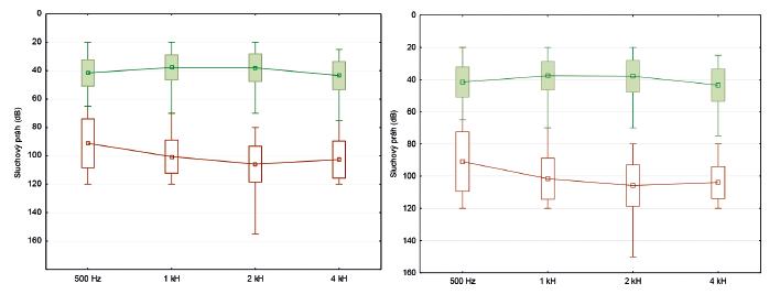 Grafy 2, 3 Krabicové diagramy srovnání před a pooperační tónové audiometrie (PTA) vpravo, resp. vlevo na jednotlivých frekvencích