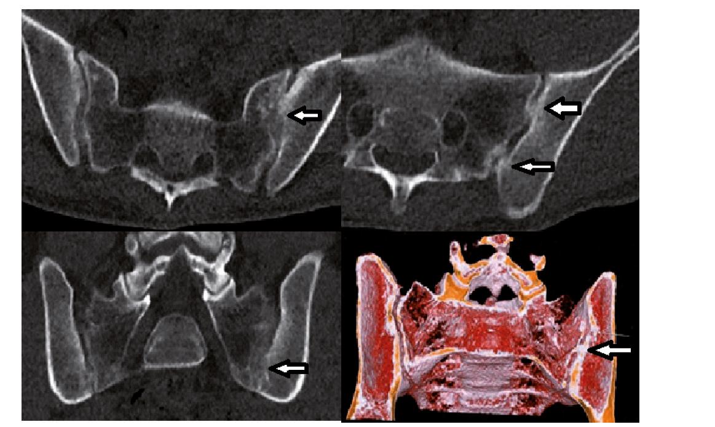 Nízkodávkové CT s cínovou filtrací (Sn LDCT). Pacient s oboustrannou sakroiliitidou, vpravo stupeň 2, vlevo stupeň 3, na 3D rekonstrukci je výřez v místě vytvořeného kostního můstku vlevo (šipka).