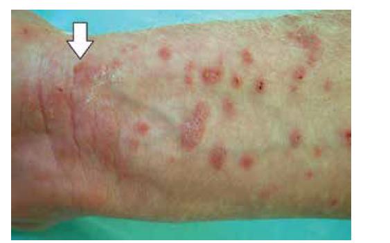 Lichen planus bullosus: šipka označuje puchýř