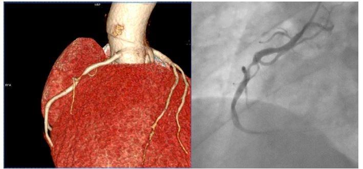 Muž, 42 let, bez anamnézy ischemické choroby srdeční s opakovanými epizodami bolesti na hrudi. Na oddělení centrálního příjmu opakovaně přijat s negativní hodnotou hypersenzitivního troponinu I a nespecifickými změnami na EKG. Na CT angiografii koronárního řečiště prokázána výrazná stenóza pravé koronární tepny (A), potvrzená při následné selektivní koronarografii (B).