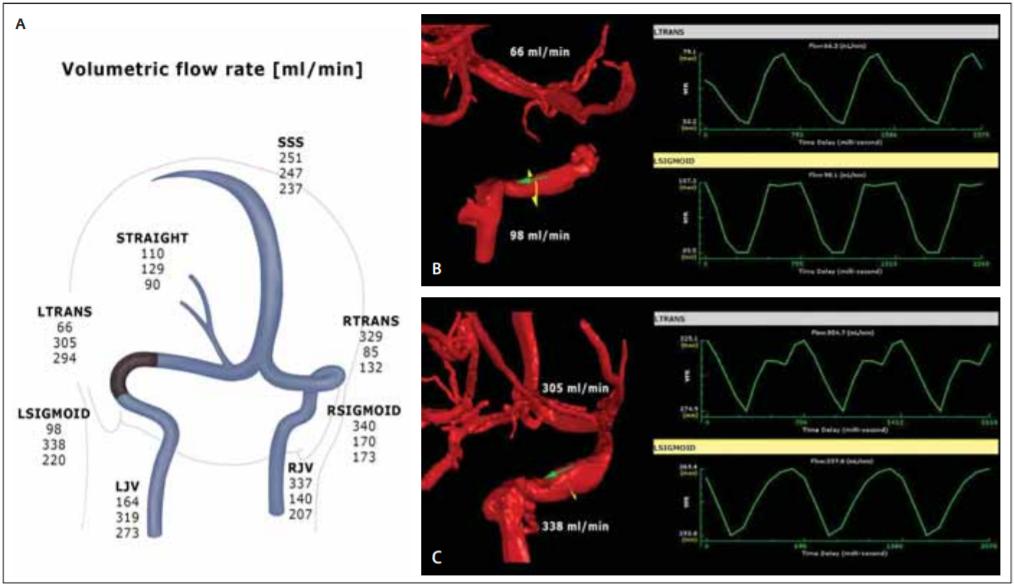 (A) qMRV – hemodynamická mapa žilní drenáže mozku. Výsledky průtoků v ml/min jsou řazeny chronologicky, horní hodnota – před zavedením stentu, střední – 1. den po zavedení stentu, dolní – s odstupem 6 týdnů; (B) 3D model stenotického úseku přechodu levého s. transversus a s. sigmoideus s nízkým průtokem; (C) signifi kantní nárůst průtoků po implantaci stentu při kontrole 1. den po intervenci.<br> Fig. 1. (A) qMRV – haemodynamic map of cerebral venous drainage, fl ow values in ml/min: upper number – before stenting, middle number – day 1 after stenting, lower number – at 6 weeks after stenting; (B) 3D model of the stenosis of the transitional segment between the left transverse and sigmoid sinuses with a low fl ow; (C) signifi cant fl ow increase after stent insertion at day 1 follow-up.