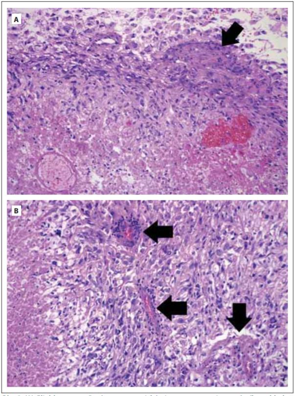 (A) Glioblastom tvořený vysoce atypickými astrocyty gemistocytárního vzhledu (nahoře), v nádoru přítomno ložisko endoteliální proliferace (šipka) a nekrózy (dole). (B) Glioblastom tvořený vysoce atypickými astrocyty, v nádoru vícečetná ložiska endoteliální proliferace (šipky) a nekróza (vlevo). Hematoxylin-eosin. Zvětšení 200×.<br> Fig. 2. (A) Glioblastoma composed of highly atypical astrocytes with gemistocytic features (top). Focus of endothelial proliferation is present (arrow) as well as area of necrosis (bottom). (B) Glioblastoma is composed of highly atypical astrocytes showing multiple foci of endothelial proliferation (arrows) and area of necrosis (left). Haematoxylin-eosin. Magnifi cation 200×.