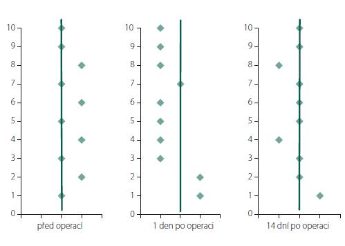 Subjektivní zraková vertikála u jednotlivých pacientů před a po kochleární implantaci. Linie vyznačuje fyziologickou normu (± 2°), body vpravo značí odklon vertikály k operované straně, body vlevo značí odklon vertikály k neoperované straně.<br> Fig. 2. Subjective visual vertical in patients before and after cochlear implantation. Line marks the physiological norms (± 2°), points on the right side mark the deviation toward the implanted side, and points on the left side mark the deviation toward the non-implanted side.