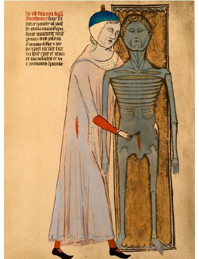 Guido da Vigevano provádí pitevní řez k otevření břišní dutiny
