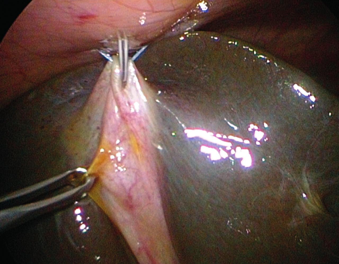 Laparoskopická cholangiografia, hypoplastický žlčník je fixovaný stehom ku prednej brušnej stene, kanyla je zavedená do žlčníka transparietálne.<br> Fig. 5. Laparoscopic cholangiography, the hypoplastic gall bladder is fixed by stich to the anterior abdominal wall, the cannula is inserted into the gallbladder transparietally.