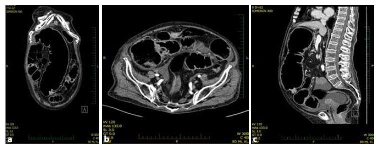 a,b,c: CT nález. Ileózní stav při nádoru c. transversum<br> Fig. 1a,b,c: CT finding. Large bowel obstruction caused by tumor of transverse colon