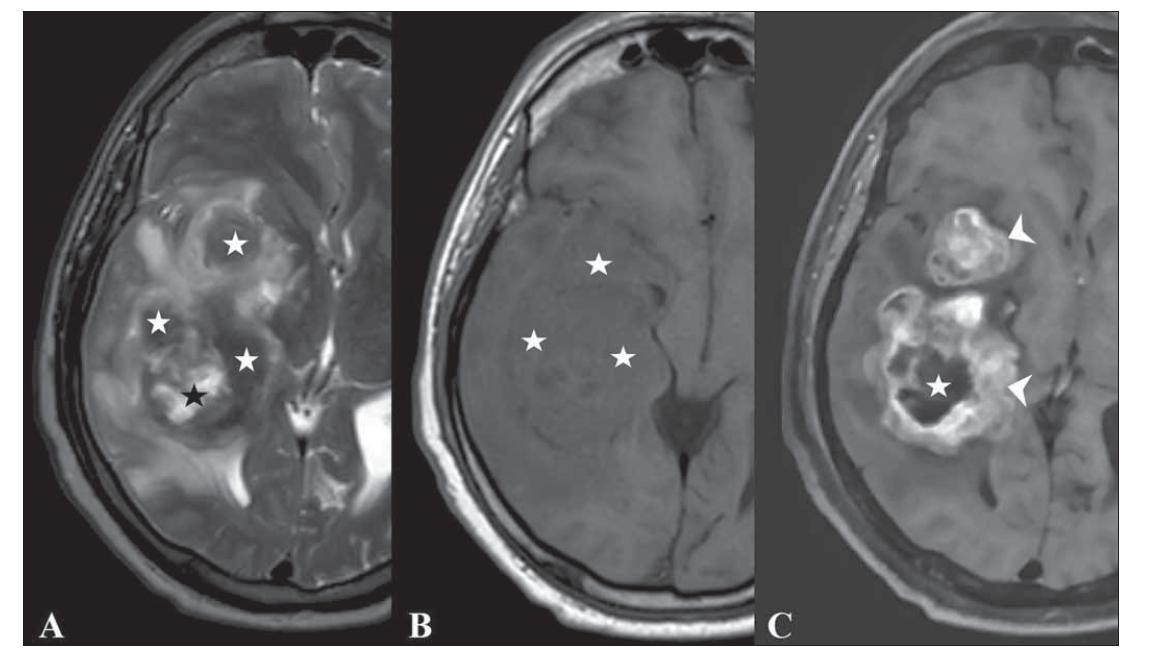 Fig. 3. T2-weighted (A), T1-weighted (B) and contrast-enhanced T1-weighted (C) images of a 62-year-old male patient with GBM show solid area isointensities on T2-WI (white stars, A), cystic area (black star, A), isointensities on T1-WI (white stars, B), contrast enhancement in solid areas (white arrow head, C) and cystic area with no enhancement (white star, C). Please note that there is no signifi cant necrosis in the contrast-enhanced image (C), it is only the cystic area that is not enhanced.<br> Obr. 3. Vážené snímky T2 (A), T1 (B) a postkontrastní T1 (C) 62letého pacienta mužského pohlaví s GBM ukazují solidní oblast izointenzit na T2-váženém snímku (bílé hvězdičky, A), cystickou oblast (černá hvězdička, A), izointenzity na T1-váženém snímku (bílé hvězdičky, B), zvýšení kontrastu v solidních oblastech (vršek bílé šipky, C) a cystickou oblast bez zvýšení kontrastu (bílá hvězdička, C). Je třeba poznamenat, že se v postkontrastním obrazu (C) nenachází žádná významná nekróza, jedná se pouze o cystickou oblast bez zvýšení kontrastu.
