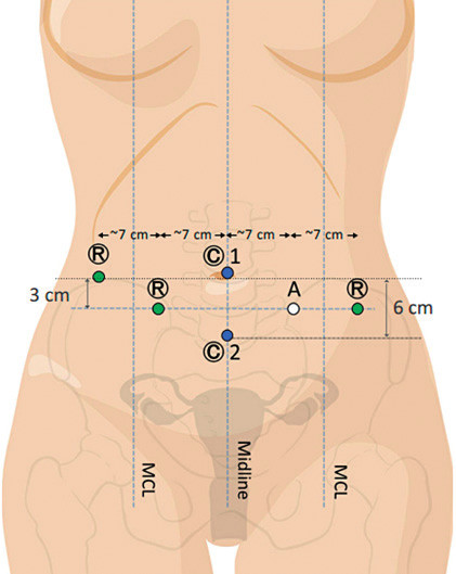 Duální dokování – rozmístění vstupů do břišní dutiny při využití dvou vstupů pro optiku (upraveno podle Intuitive Surgical, H. Falconer)