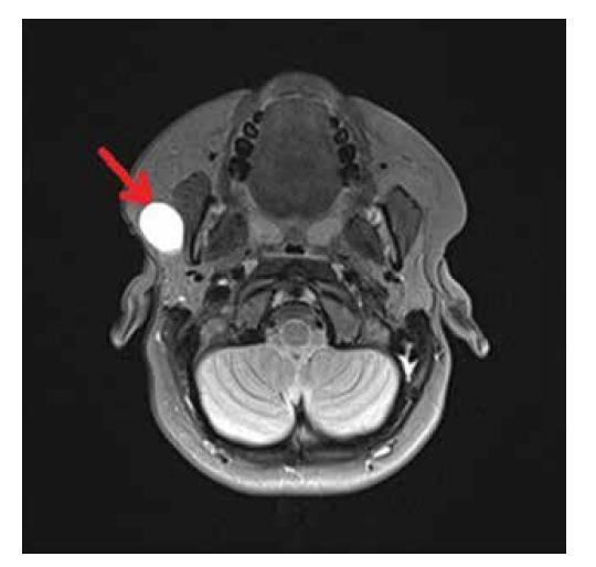 Magnetická rezonance hlavy. Hyperintenzní ložisko v T2 obraze preaurikulárně vpravo, vel. 33×24×20 mm. Šipka ukazuje na rezistenci v příušní žláze.