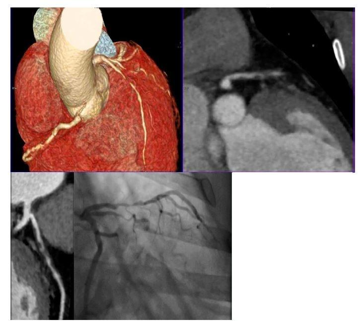 Koronární ateroskleróza s významnými stenózami na CT angiografii koronárního řečiště (A–C) u pacienta s projevy stabilní anginy pectoris v komparaci se selektivní koronarografií (D).