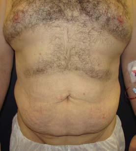 Lower body lifting, 45letý pacient po redukci hmotnosti o 50 kg pod vedením obezitologa bez bariatrické léčby – pohled zepředu předoperačně
