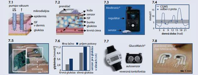 Monitorovanie glukózy v intersticiálnej tekutine [12]