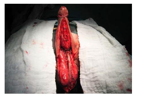 Fixace laloků pod corona glandis, stav před suturou na ventrální straně penisu<br> Fig. 8. Flap fixation under the corona of glans penis; the state prior to suturing at the ventral side of the penis