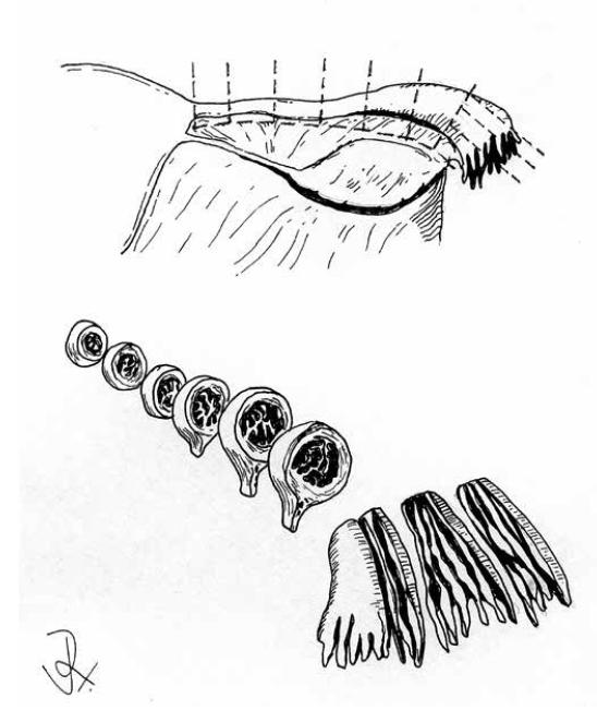 Zpracování děložní tuby podle protokolu SEE-FIM.
