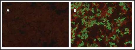 Cell-based assay, kde jsou HEK293 buňky transfekovány plazmidem kódujícím MOG.<br> Fig. 4. Cell-based assay for MOG-IgG.