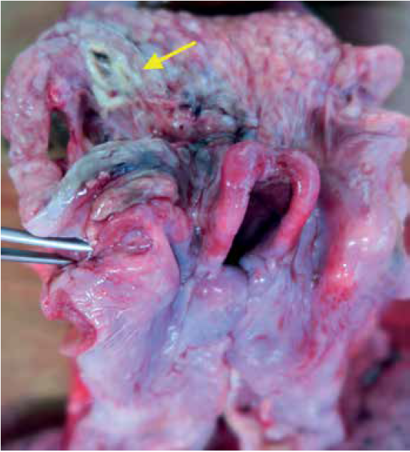Necrotic focus in the left tonsil (arrow), massive oedema of the epiglottis and adjacent soft tissue.