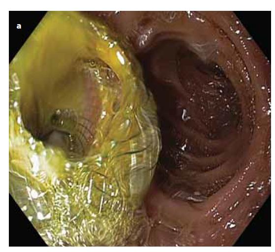 Obr. 2a) Úspešne implantovaný LAMS v bulbe duodena s odtokom žlče.<br> Fig. 2a) Successfully implanted LAMS in the bulb of the duodenum with bile drain.