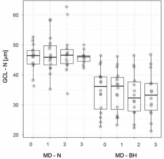 Tloušťka nazální vrstvy GCL u pacientů s, resp. bez bitemporální hemianopie. Boxplot vyznačuje medián, dolní, horní kvartil a maximální/minimální hodnoty, ne však více než 1,5 mezikvartilového rozpětí. Hodnoty jsou rozmítány, aby bylo vidět množství překrývajících se hodnot.<br> Zkratky: GCL - N – vrstva nazálních gangliových buněk, MD - N, resp. - BH – mean deviation zorného pole u pacientů s, resp. bez, bitemporální hemianopie, 0 – předoperační vyšetření, 1, 2, resp. 3 – první, druhá, resp. třetí pooperační kontrola