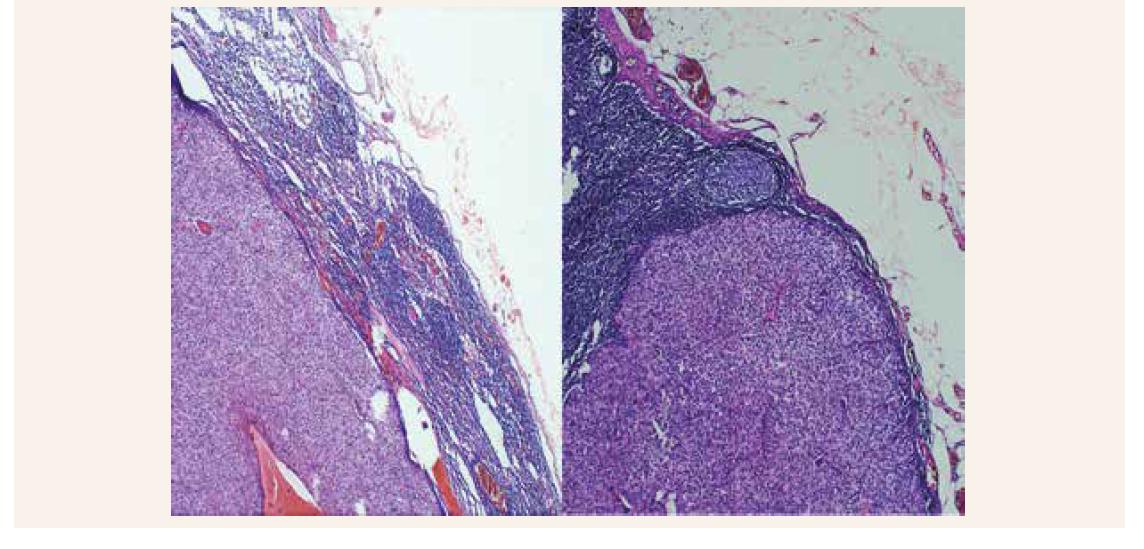 Metastatický postih krčnej lymfatickej uzliny karcinómom prištítneho telieska