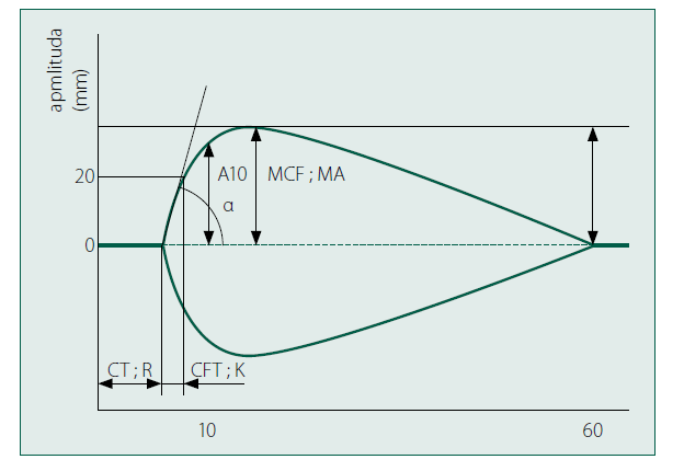 Standardní tromboelasto-metrická (grafická) křivka apmlituda