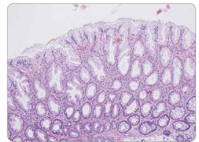 Hyperplastický polyp tračníku – pilovité uspořádání epitelu ve svrchní polovině krypt, bazální polovina krypt bez dilatace a bez pilovité kontury.