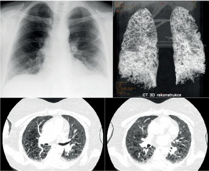 Klasický rentgenový snímek pacientky s histiocytózou z Langerhansových buněk, u níž došlo k náhlému zhoršení dušnosti, neznázornil nic patologického, zatímco následující den provedené HRCT zobrazení 3D rekontrukce HRCT plic u této ženy prokázalo těžké postižení plicního parenchymu mnohočetnými cystami. Jednalo se o pokročilou formu plicní formy histiocytózy z Langerhansových buněk, která ale na běžném snímku plic nebyla zřetelná.