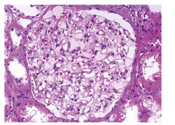 Detail glomerulu s nápadně zvětšenými světlými podocyty. Cytoplasma podocytů je jemně zrnitá a působí pěnitým dojmem, který způsobují inkluze lipidů. Zbývající struktury jsou přiměřené (HE, objektiv 40x).