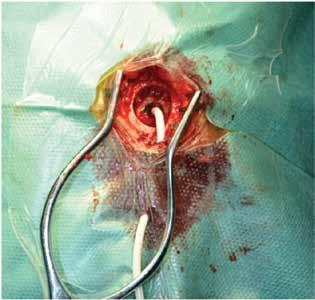 Drenáž subdurálního hematomu z návrtu<br> Fig. 2: Drainage of subdural hematoma through a burr hole