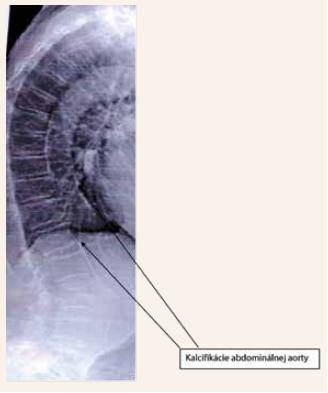 Obr | Vizualizácia kalcifikácií abdominálnej aorty pomocou VFA (Vertebral Fracture Assessment) | Abdominal aorta calcifications on vertebral morphometric scan
