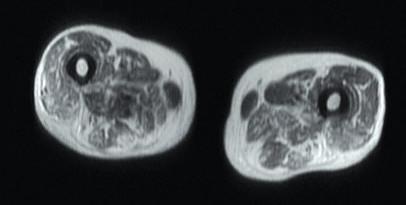 Axiální T1 vážená sekvence – tuková přestavba asvalová atrofie upacienta simunitně zprostředkovanou nekrotizující myopatií. Zdroj: Archiv Revmatologického ústavu (ÚVN Střešovice, Discovery 450; 1,5 T)