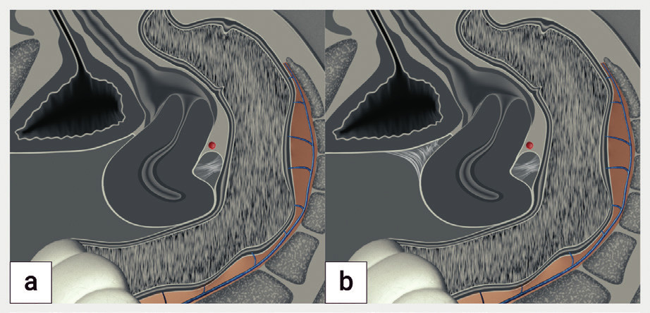 Schéma obliterace pánve (frozen pelvis)<br> Děloha je deformována na podkladě srůstů v Douglasově prostoru do tvaru 'otazníku'. Při lehkém tlaku sondou proti děložnímu hrdlu není možné zobrazit posunlivost dělohy proti rektu (negative sliding sign) na podkladě srůstů, proti močovému měchýři je děloha posunlivá (positive sliding sign) (a), v případě adhezí v předním a zadním kompartmentu je děloha neposunlivá proti močovému měchýři a rektu (b).