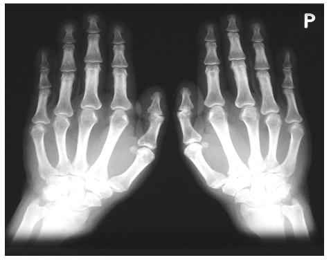 Akroosteolýza prstů u hypertrofické osteoartropatie