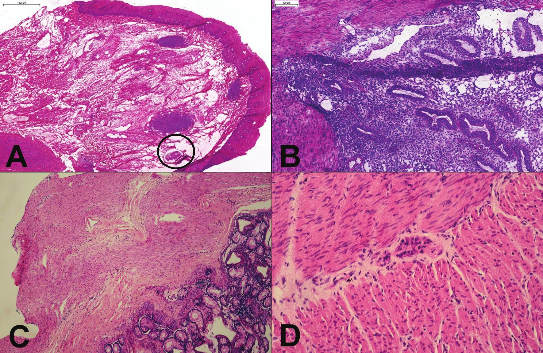 """(A) Proximálny resekčný okraj resekátu adenokarcinómu ezofago-gastrickej junkcie. Slizničný povrch bol makroskopicky aj mikroskopicky """"čistý"""", v kapilárach lamina propria však boli zachytené zhluky nádorových buniek (v krúžku). (B) Tumor rekta u 25 ročnej ženy. Mikroskopicky boli zachytené mitoticky aktívne, mierne """"atypické"""" žliazky, vzdialene pripomínajúce kolorektálny adenokarcinóm. Kľúčom k správnej diagnóze endometriózy je rozpoznanie endometriálnej strómy. (C) Hirschprungova choroba: chýbanie gangliových buniek v plexus submucosus a myentericus. (D) Imatúrne gangliové bunky v plexus myentericus."""