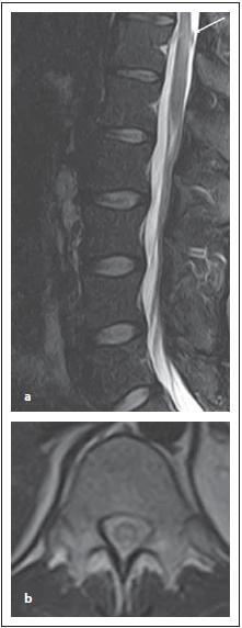 Pacient s MOG-IgGpozNMOSD, v úrovni Th11–12 (a) je intramedulárně patrné ložisko zvýšeného signálu v T2 váženém obraze, na transverzální řezu je patrné typické centrální uložení ložiska (b).<br> Fig. 10. MOG-IgGposNMOSD patient, sagittal T2-weighted image, transversal cut, intramedullary lesion in Th11–12 segment (a), with typical central localization in the transversal cut (b).