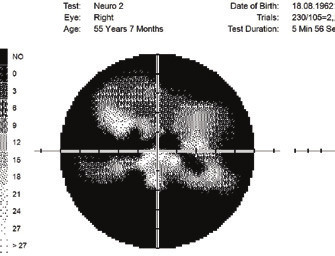 Changes of visual field upon anterior ischemic neuropathy of the optics and GPA