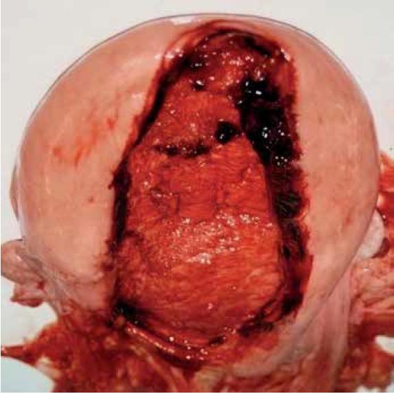 Trhlina zadnej steny tela maternice.
