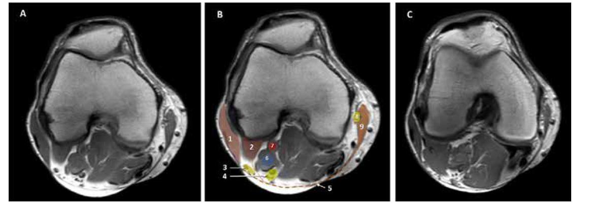 MRI kolena. A. nativní obraz. B. kolorovaný obraz: 1. m. biceps femoris, 2. zevní hlava m. gastrocnemius, 3. nervus peroneus communis, 4. n. tibialis, 5. hluboká fascie, 6. vena poplitea, 7. arterie poplitea. 8. n saphenus, 9. m sartorius. C. nativní obraz: horizontální řez 3 mm distálněji než A a B. Zevní hlava m. gastrocnemius je mohutnější a zcela odděluje n. tibialis od n. peroneus