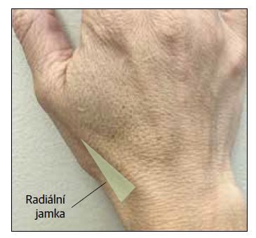 Radiální jamka. Citlivost při palpaci po traumatickém poranění vyžaduje další vyšetření zlomeniny skafoidu.