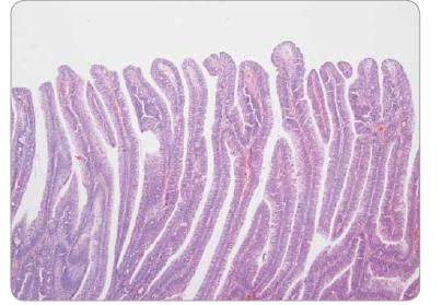 Vilózní adenom tračníku s low-grade epiteliální dysplazií – nevětvené štíhlé klky