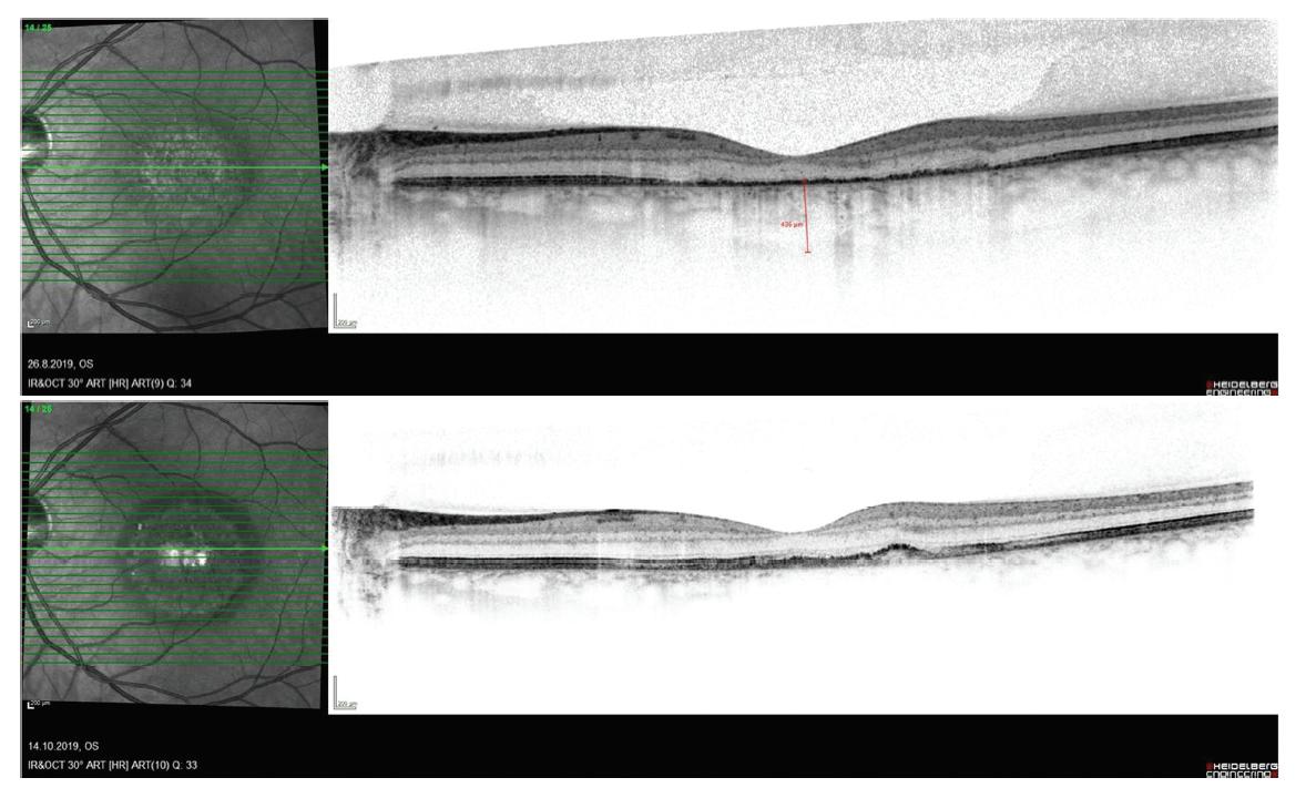Postupný vývoj nálezu na snímku z optické koherenční tomografie u pacienta s chorioretinitidou, obnova reflexivity retinálního pigmentového epitelu (RPE) (A), migrace buněk RPE centrálně (B)