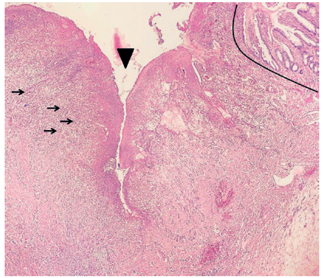 Fig. 6: A histological section of the ulceration of the wall of the sigmoid colon <br> Staining with Hematoxylin Eosin (EO), Magnification: 40×. Vessels of the nonspecific granulation tissue (→), which forms the ulceration. Fissure of the ulceration (▼). Border between ulceration and normal mucosa (black line).