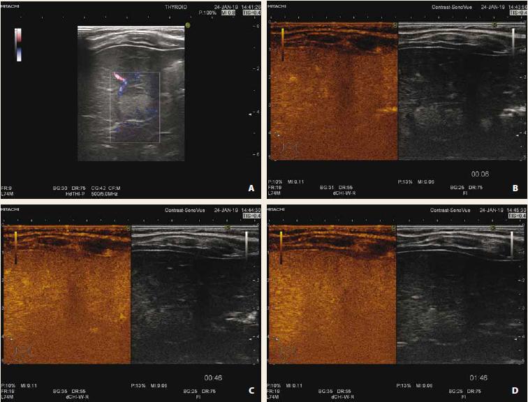 Fokální steatóza jater s využitím dopplerovského zobrazení (A), CEUS arteriální fáze (B), portální fáze (C), pozdní fáze (D). Po podání kontrastní látky léze ve všech fázích splývá (je izoechogenní) s okolním parenchymem jater.<br> Fig. 2. Focal liver steatosis with use of doppler mode (A), CEUS arterial phase (B), portal phase (C), late phase (D). After application of contrast agent, lesion is isoechogenic with surrounding liver parenchyma during all phases.