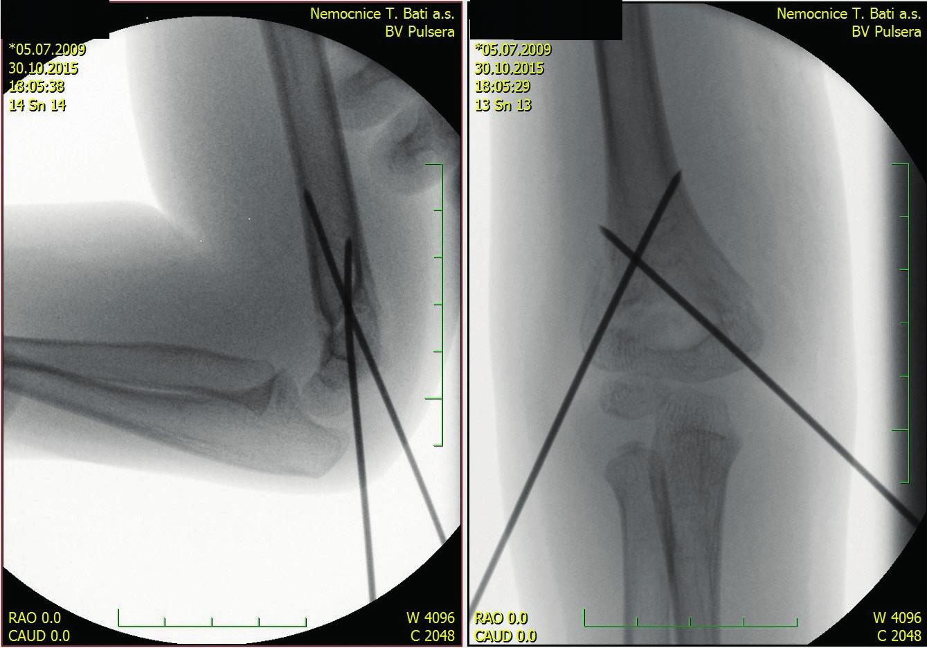 Tatáž zlomenina – perioperační snímek