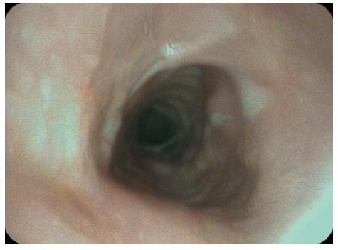 Bronchoskopický nález po tyreoidektomii a extrakci stentu - prakticky úplná normalizace lumina.
