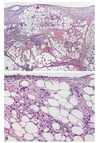 A: Infiltrace mezenteria diseminovaným nádorem s výraznou desmoplasií ve stromatu (HE, 40x); B: Detail difuzně rostoucích nádorových buněk bez zřetelného organoidního uspořádání (HE, 200x).