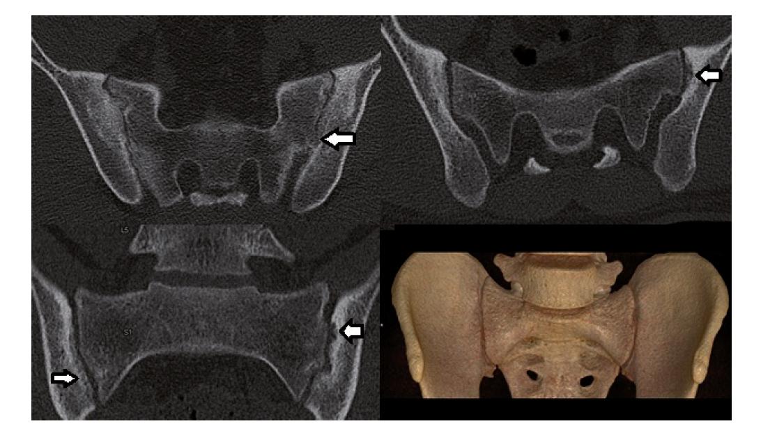 CT se standardní dávkou. Pacient s oboustrannou sakroiliitidou – 3. stupně vpravo a 2. stupně vlevo. Patrné usurace, subchondrální skleróza, vpravo na prvním snímku patrný kostní můstek (šipka).