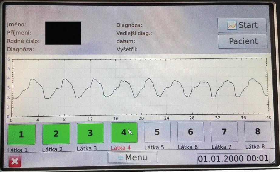 Zobrazení výsledku vyšetření na displeji přístroje.<br> Pacient při klidovém dýchání dosahuje průměrných peaků inspiria 3,9V.