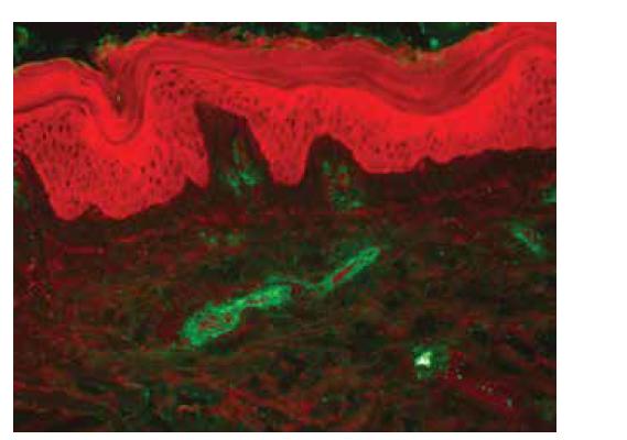 PIF, IgA depozita cév v papilární dermis, anti-IgA FITC (zvětšeno 200 x)