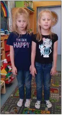 Sestry (dvojčata) se SMA III.<br> Fig. 8. Sisters (twins) with SMA III.