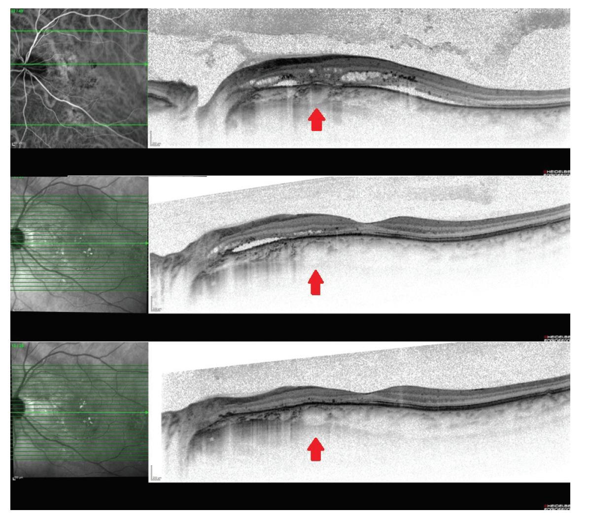 Vývoj nálezu na snímku z optické koherenční tomografie – před a po fotodynamické terapii, patrné zúžení makrocévy a pokles ablace smyslového epitelu